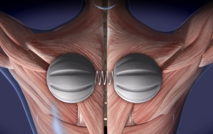 Ballance Kurse in der Physiotherapie